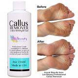 8oz Callus Remover