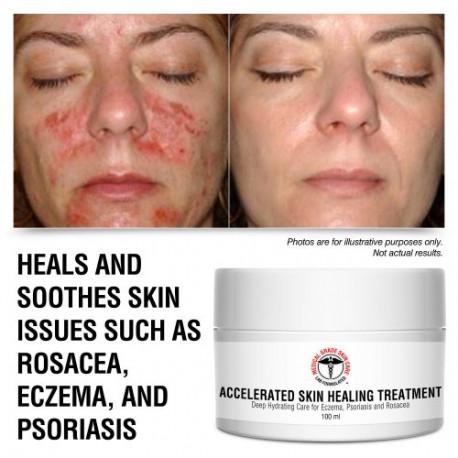 Accelerated Skin Healing Treatment