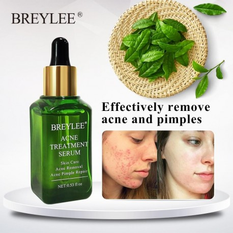 THB Anti ACNE SERUM for Treatment of Cystic Acne & Pimples